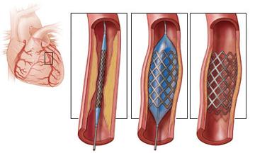 Angioplastie coronarienne et stents - Tunisie Esthetic